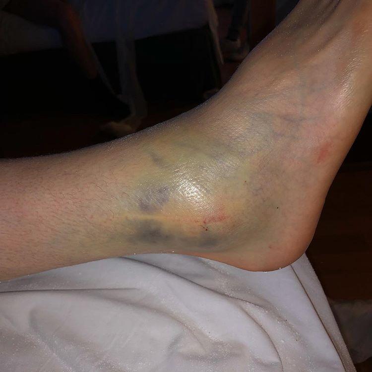 Romain Febvre Injury Update